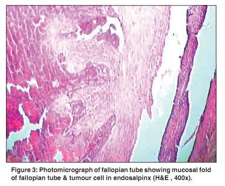 Histological features are consistent with primary serous ...