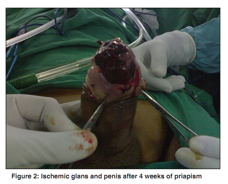penectomy experience