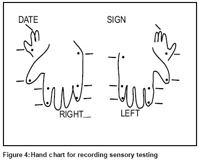 Hand Sensation Tests Pictures to Pin on Pinterest PinsDaddy