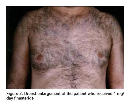 Propecia cancer