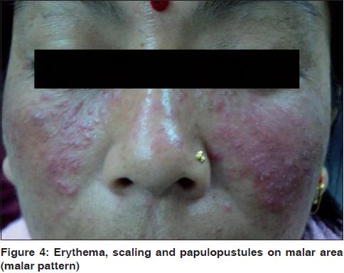 dermatitis steroidica