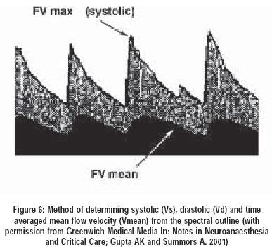 Venous Doppler Lower Extremity