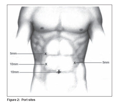 Open Jejunostomy Tube Placement