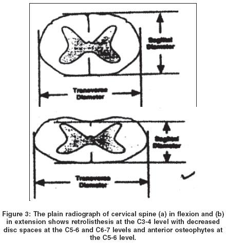 retrolisthesis of c3 and c4