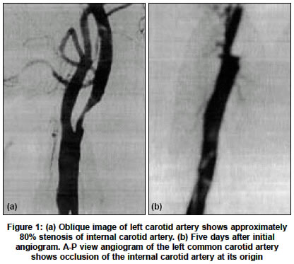 Home » 2013 Carotid Angiography Codes