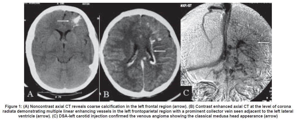 medusa head appearance medical dictionary