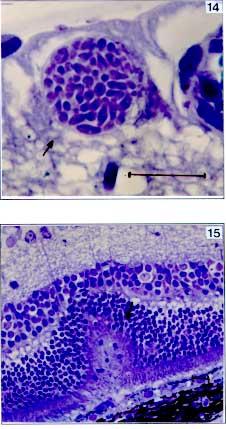 toxoplasma gondii infection among pregnant females in lahore Проектирование технологии паштета на рыбной основе с добавлением гидролизата для питания людей пожилого возраста.