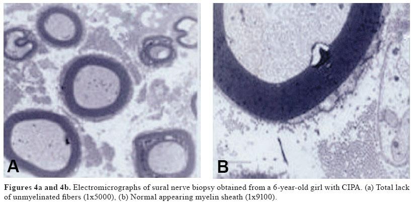 Laryngeal Motor Sensory Neuropathy Symptoms Neuropathy Definition